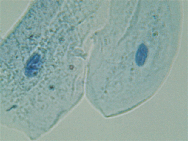 Cheek Cells, Methylene Blue Stain